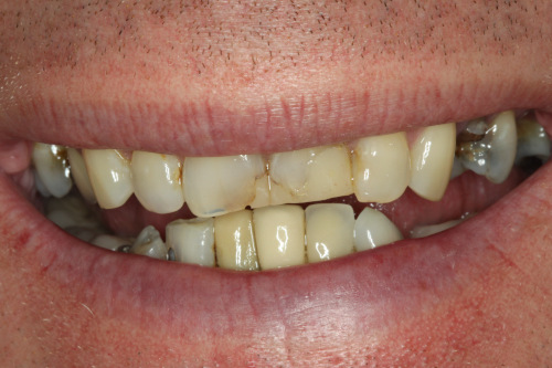 Madison Oral Surgery Dental Implants Preop