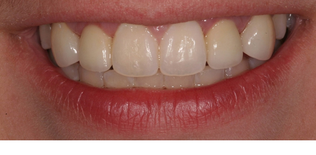 picture of   Crowns and Veneers 2
