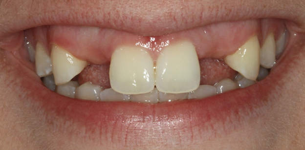 picture of 20161123c 645 Dental Implant Gummy Smile 1