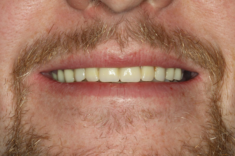 After dental implants from Madison Oral Surgery & Dental Implants in Madison, WI