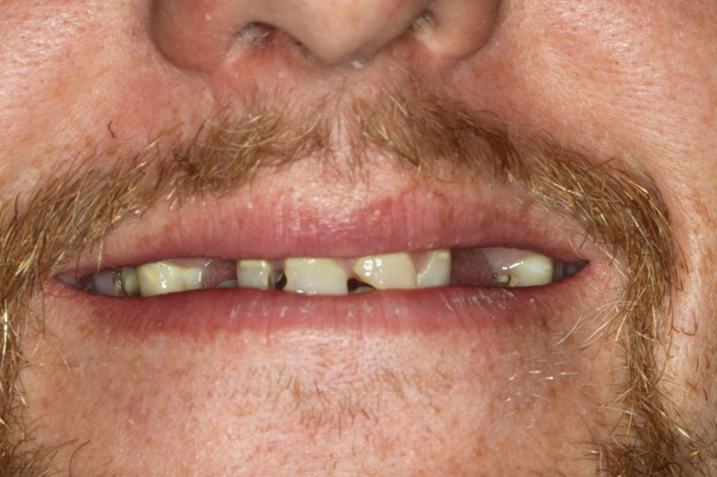 Before dental implants from Madison Oral Surgery & Dental Implants in Madison, WI