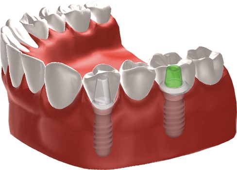 Dental Implants Madison, WI