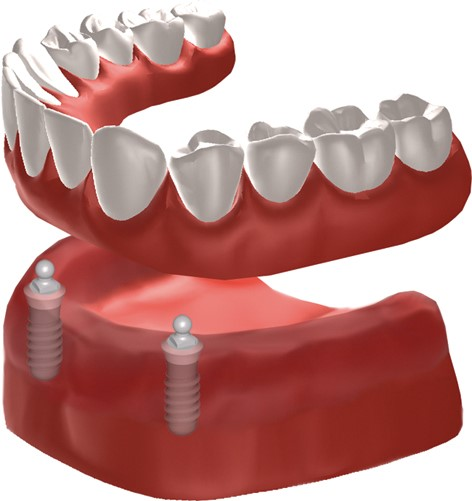 dentl implant supported dentures - Madison Oral Surgery and Dental Implants