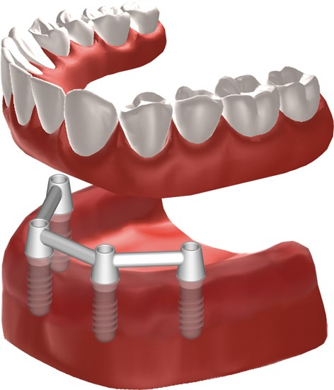 Dental implant-supported dentures at Madison Oral Surgery & Dental Implants in Madison, WI
