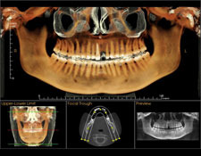 Dental CT Scan at Madison Oral Surgery & Dental Implants