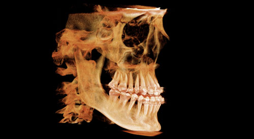 3D Imaging at Madison Oral Surgery & Dental Implants in Madison, WI
