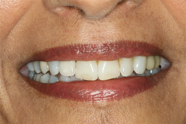 A patient with a dental implant