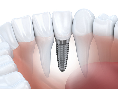 Dental Implant Madison Oral Surgery & Dental Implants WI 53713