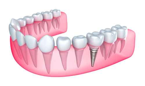 Who Should Strongly Consider Getting Dental Implants?
