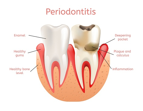 Diagram of teeth with periodontitis gum disease compared to healthy gums at Madison Oral Surgery & Dental Implants in Madison, WI