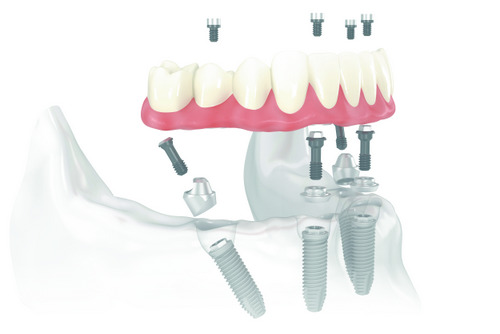 Are You a Good Candidate for All-on-4 Dentures?