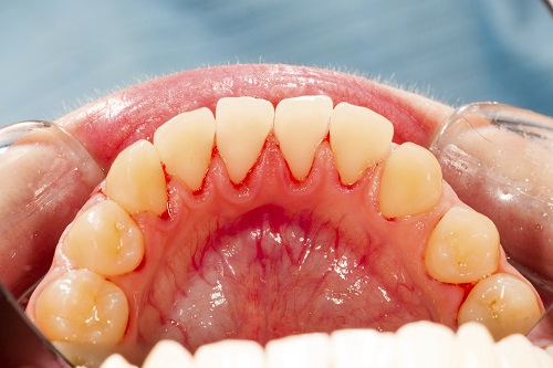 A close up of a patents mouth suffering from gum disease.